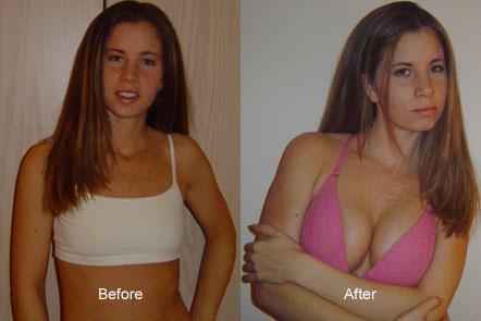 Before และ After ของหญิงสาวคนหนึ่งที่ใช้บริการนี้